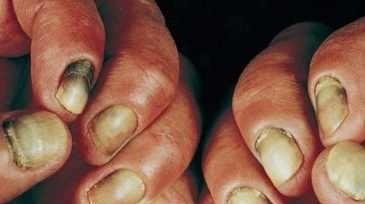 Pseudomonas infection