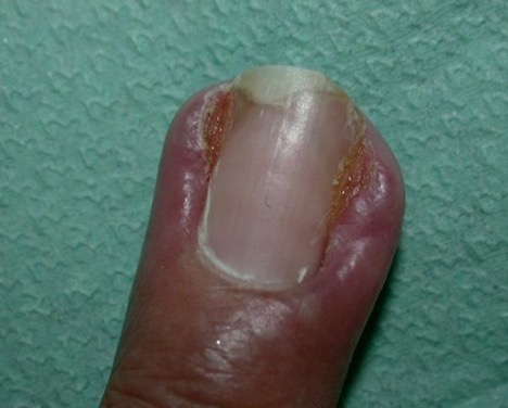 Microbial nail infection